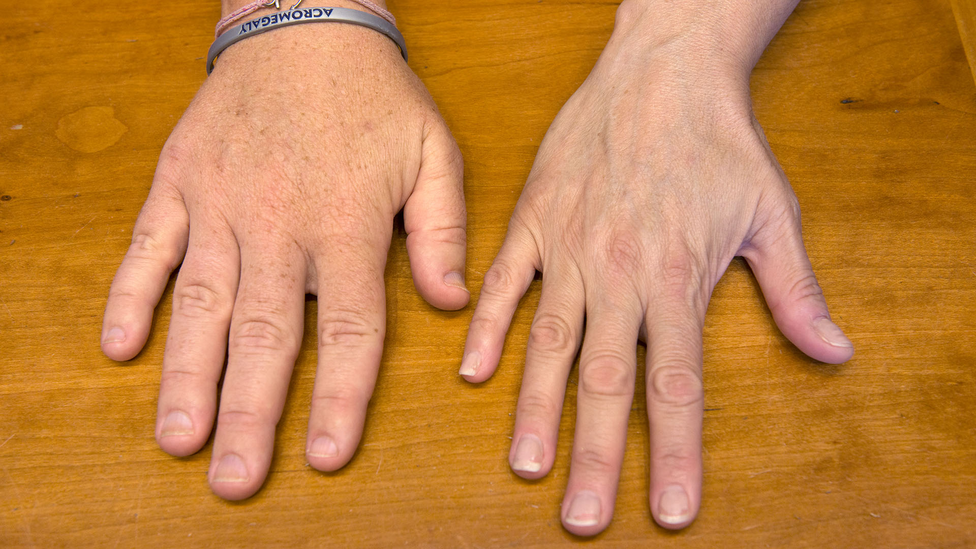 Acromegaly And Acromegaly Resources What Is Acromegaly