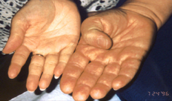 Acromegaly Hands